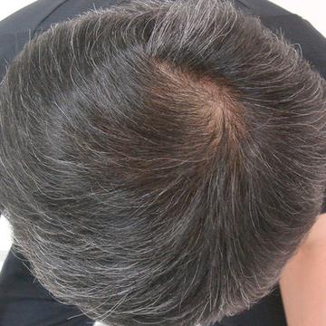 ドーズ美容外科の薄毛治療・AGA・発毛の症例写真[アフター]