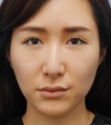 湘南美容クリニック新橋銀座口院の顔のしわ・たるみの整形(リフトアップ手術)の症例写真[アフター]