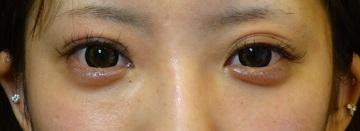 さやか美容クリニック・町田の目・二重の整形の症例写真[ビフォー]