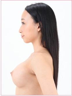 豊胸手術【人工乳腺法】の症例写真[アフター]
