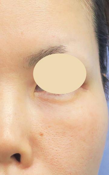 湘南美容クリニック 武蔵小杉院の目元の整形、くま治療の症例写真[アフター]