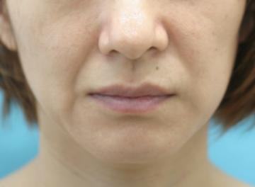 大塚美容形成外科 東京大塚院の顔のしわ・たるみの整形の症例写真[ビフォー]
