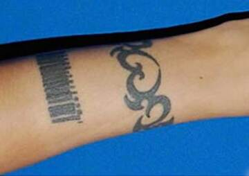 東京イセアクリニック 銀座院のタトゥー除去(刺青・入れ墨を消す治療)の症例写真[ビフォー]