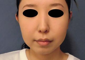 よこはまエーブクリニックの顔の整形(輪郭・顎の整形)の症例写真[アフター]