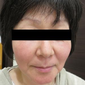はなふさ美容皮膚科のシミ治療(シミ取り)・肝斑・毛穴治療の症例写真[アフター]