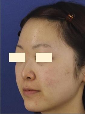 プロテーゼ・鼻先の形成(肋軟骨) 術後3ヶ月の症例写真[ビフォー]