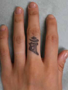 千葉中央美容形成クリニックのタトゥー除去(刺青・入れ墨を消す治療)の症例写真[ビフォー]