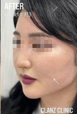GLANZ CLINIC (グランツクリニック)の輪郭・顎の整形の症例写真[アフター]