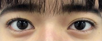 湘南美容クリニック川崎院の目・二重の整形の症例写真[ビフォー]