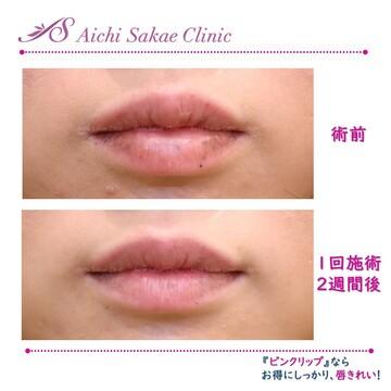 あいち栄クリニックの口もと、唇の整形の症例写真