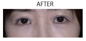 恵聖会クリニックの目元の整形、くま治療の症例写真[アフター]