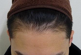 TCB 東京中央美容外科の薄毛治療・AGA・発毛の症例写真[アフター]
