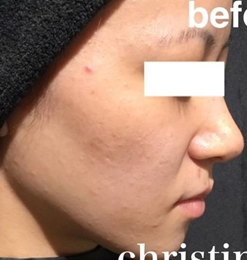CHRISTINA clinic GINZA (クリスティーナクリニック銀座)のニキビ治療・ニキビ跡の治療の症例写真[ビフォー]