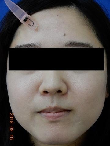 ハートライフクリニックのニキビ治療・ニキビ跡の治療の症例写真[アフター]