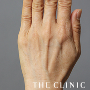 THE CLINIC(ザ・クリニック)の顔のしわ・たるみの整形(リフトアップ手術)の症例写真[ビフォー]