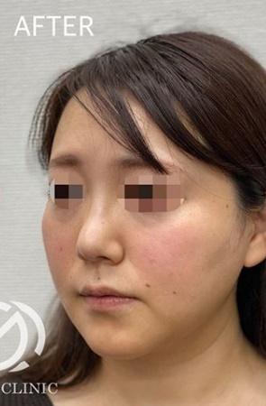 GLANZ CLINIC (グランツクリニック)のシワ・たるみ(照射系リフトアップ治療)の症例写真[アフター]