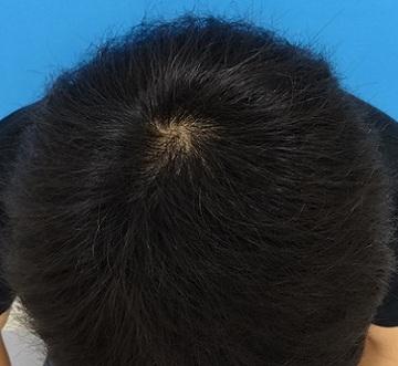 東京中央美容外科・美容皮膚科の薄毛治療・AGA・発毛の症例写真[ビフォー]