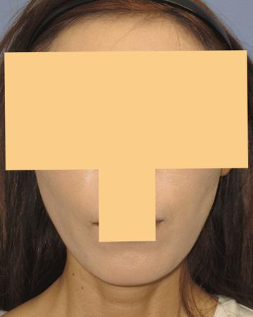 湘南美容クリニック 高崎院の顔のしわ・たるみの整形(リフトアップ手術)の症例写真[アフター]