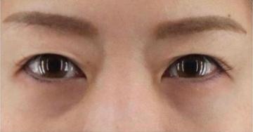 銀座長瀬クリニックの目・二重整形の症例写真[ビフォー]
