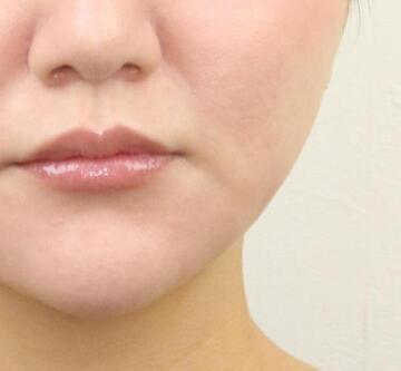 オザキクリニック 目黒祐天寺院の顔のしわ・たるみの整形(リフトアップ手術)の症例写真[アフター]