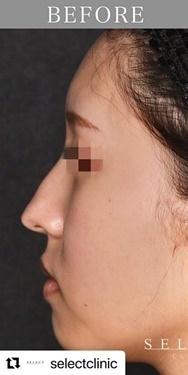 SELECT CLINIC(セレクトクリニック)の鼻の整形の症例写真[ビフォー]