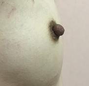 N クリニックの乳首・乳輪の整形の症例写真[アフター]