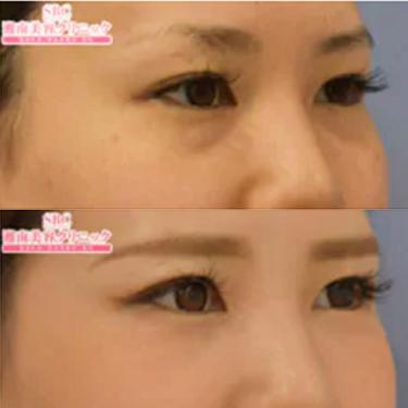美容 目の下 湘南 たるみ 外科 の
