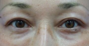 ガーデンクリニックの目・二重の整形の症例写真[アフター]