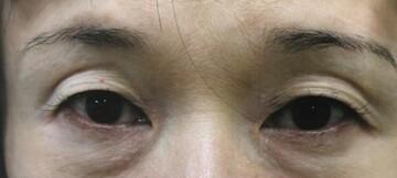 大塚美容形成外科・歯科の目・二重整形の症例写真[ビフォー]