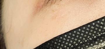 エレナクリニック 新宿本院のシミ治療(シミ取り)・肝斑・毛穴治療の症例写真[アフター]
