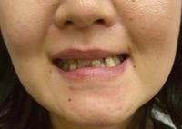 ザ・ホワイトデンタルクリニックの矯正歯科の症例写真[ビフォー]