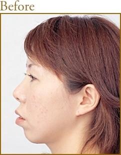 共立美容外科・歯科の顔の整形(輪郭・顎の整形)の症例写真[ビフォー]
