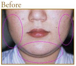 共立美容外科・歯科の脂肪吸引の症例写真[ビフォー]