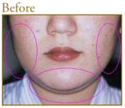 共立美容外科・歯科の症例写真[ビフォー]