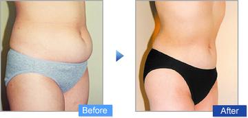 コムロクリニック(旧コムロ美容外科)の脂肪吸引の症例写真