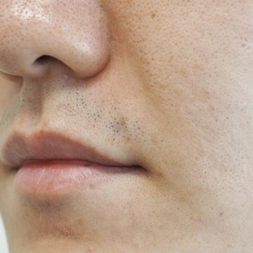 タウン形成外科クリニックのホクロ除去・あざ治療・イボ治療の症例写真[アフター]
