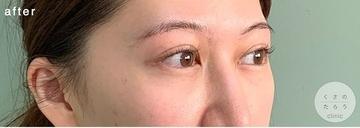 くさのたろうクリニックの目元整形・クマ治療の症例写真[アフター]