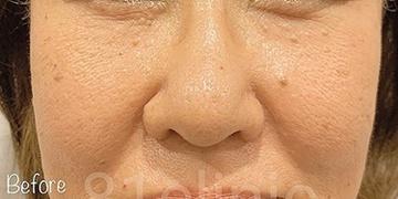 81clinicのホクロ除去・あざ治療・イボ治療の症例写真[ビフォー]