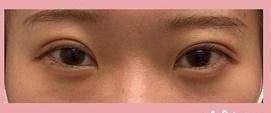 ロレシー美容クリニック 心斎橋駅前院の目・二重整形の症例写真[アフター]