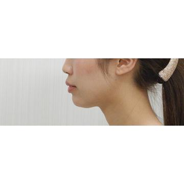 水の森美容外科の顔の整形(輪郭・顎の整形)の症例写真[アフター]