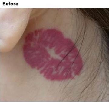 静岡美容外科橋本クリニックのタトゥー除去(刺青・入れ墨を消す治療)の症例写真[ビフォー]