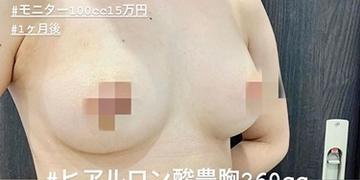 ルラ美容クリニックの豊胸手術(胸の整形)の症例写真[ビフォー]