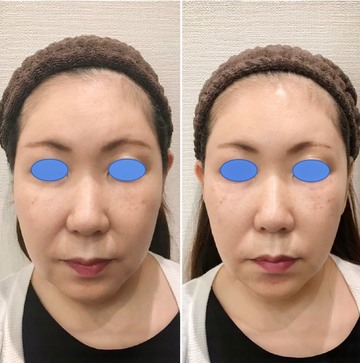 の顔のしわ・たるみの整形(リフトアップ手術)の症例写真