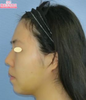 の脂肪吸引の症例写真[アフター]