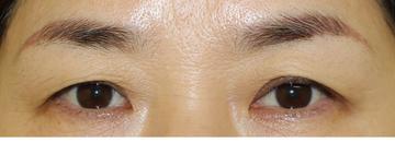 千葉中央美容形成クリニックの目元の整形、くま治療の症例写真[ビフォー]