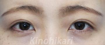樹のひかり 形成外科・皮ふ科の目・二重の整形の症例写真[アフター]