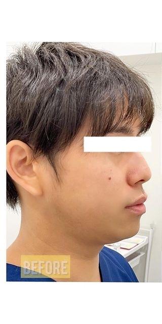 Kalon Clinic(カロンクリニック)のリフトアップレーザーの症例写真[ビフォー]