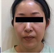 とりい皮膚科クリニックの症例写真[アフター]