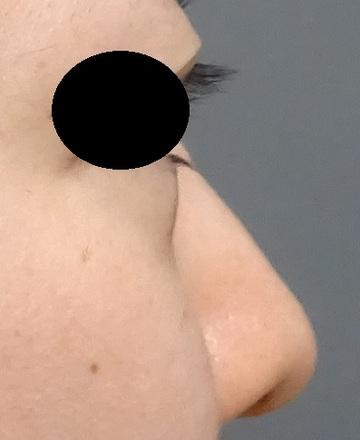 TCB東京中央美容外科の鼻の整形の症例写真[ビフォー]
