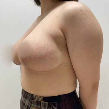 東京美容外科 沖縄院の症例写真[アフター]